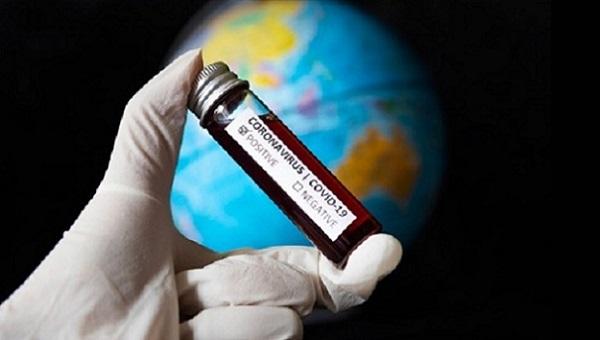 Хроника коронавирусной пандемии: мир продолжает разгон, в Украине резкий скачок. Данные на 30 июня